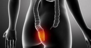 Hemorroida: Alivie os sintomas com chás caseiros
